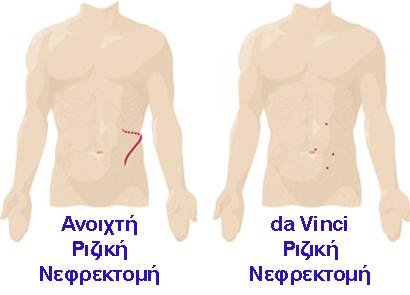 Νεφρεκτοµή